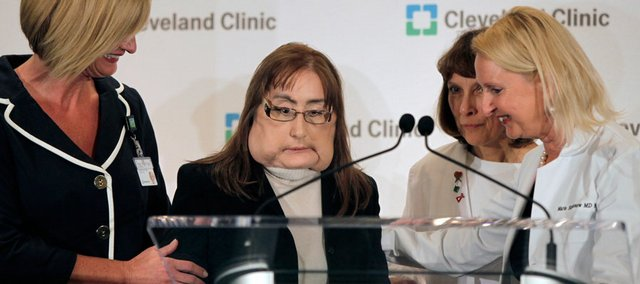 Connie Culp, second from left, who underwent the first face transplant surgery in the U.S., is helped to the podium Tuesday by her head surgeon, Dr. Maria Siemionow, right, as well as Renee Bennett, nurse manager for the clinic's transplant program, far left, and Pat Lock, a nurse with the transplant team, third from left, before speaking at a news conference at the Cleveland Clinic in Cleveland.
