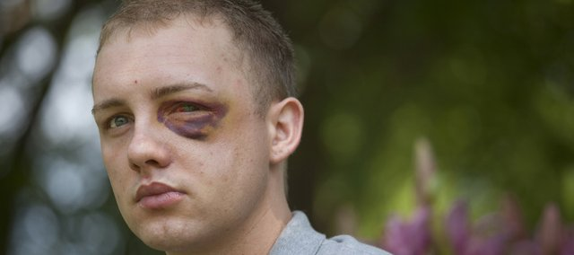 Rudolph Neugebauer III was injured in what he calls a hate crime against him because he is gay. He said he was attacked 