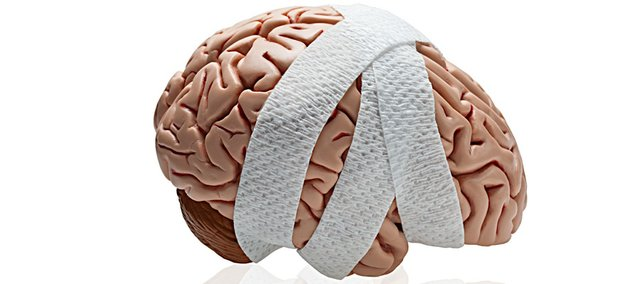 Local coaches and trainers say they're increasingly wary of the dangers of potential brain injuries.
