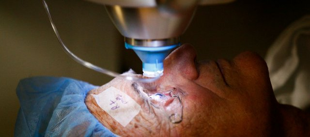 Lawrence resident Donald Ogburn lies still as a laser is lowered onto his right eye for cataract-removal surgery at Lawrence Memorial Hospital.