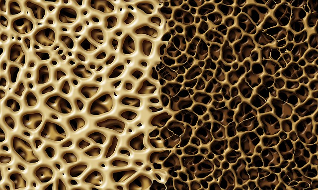 This illustration shows healthy, strong bone tissue, at left, compared to bone tissue that has weakened and lost density.