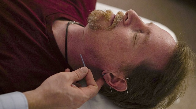 David Ramsey, a Medicaid patient who suffers from chronic pain after falling off a cliff in 2011, receives acupuncture treatment in Warrensville Heights, Ohio on Nov. 13, 2017. Long derided as pseudoscience, acupuncture is increasingly being used by doctors and officials seeking a new weapon in the nation's struggle with opioids. (AP Photo/Dake Kang)
