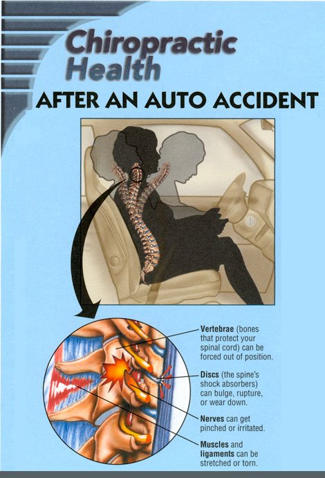 After An Auto Accident