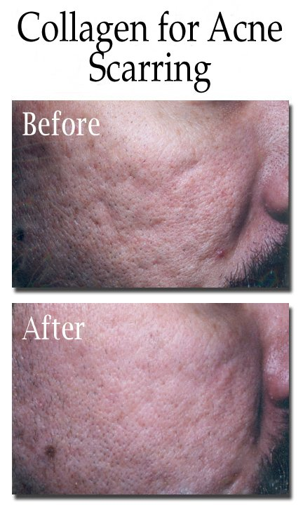 Collagen for Acne Scarring