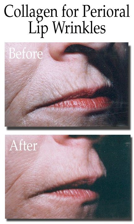 Collagen for Perioral Lip Wrinkles