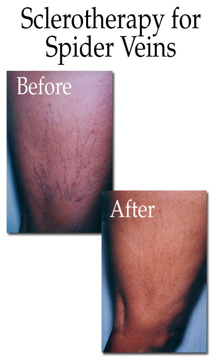Sclerotherapy for Spider Veins