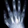 X-ray & Fracture Care