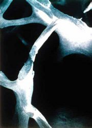 Bone with osteoporosis is porous and weak