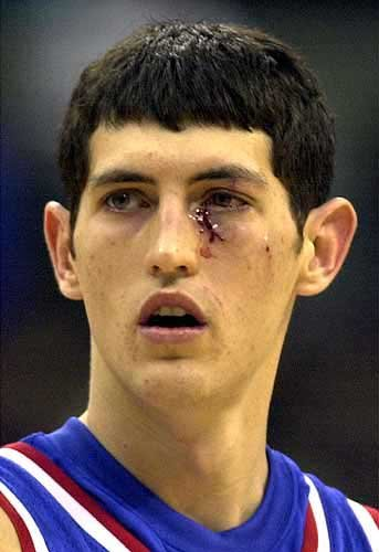 Photo Ku S Kirk Hinrich Sports A Nasty Bruise And Cut Ljworld Com