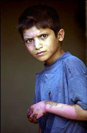 Haidar Falah Mutlaq, 10, keeps his left fingers bent and hops on his left leg because it's too painful to use the right one. Haidar was injured June 13 when he and two other children set fire to a bag containing explosive powder left from the war in Iraq.