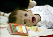 Three-month-old Iraqi boy Ali Mohammed Jabbar cries during treatment for diarrhea in the General Teaching Hospital for Children in Baghdad, Iraq, in this June 4 photo. Ali, who prompted an outpouring of sympathy around the world after he was photographed in the undersupplied Iraqi hospital, has died, doctors said Saturday.