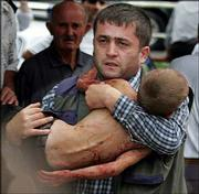 A man carries an injured child who escaped from a seized school in Beslan, North Ossetia.