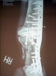 An X-ray of the injured right rear leg of Kentucky Derby winner Barbaro shows the hardware put in to set the break.