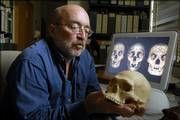 David Frayer, professor of anthropology at Kansas University, holds a replica cast of the skull of an Australian aborigine. Frayer and an international team of researchers are disputing claims that 18,000-year-old remains found on the Indonesian island of Flores were those of a previously unknown species of little people, nicknamed hobbits.
