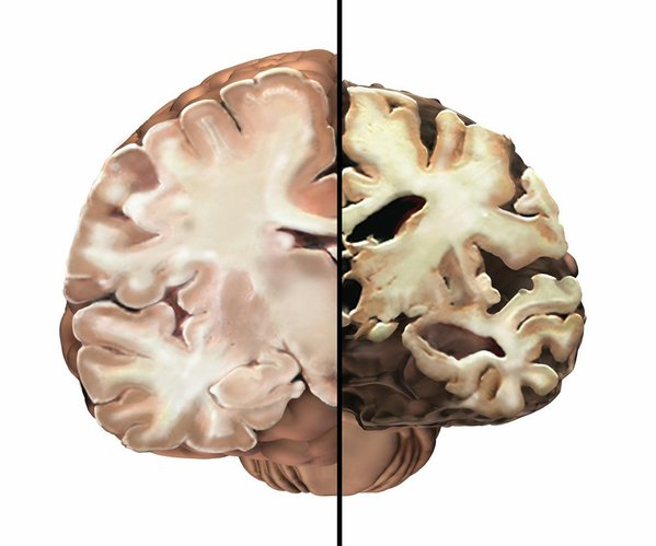 Cutaways of a healthy brain, left, and a brain affected by Alzheimer's. The severe form of the disease might last one to five years. Because of cell damage, the brain shrinks, patients can't communicate and they fail to recognize family and close friends.
