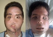 Oscar, a man who underwent a full-face transplant in April appears before, left, and after, right, the surgery at the Vall d'Hebron Hospital in Barcelona, Spain, in these undated photos released by the hospital.