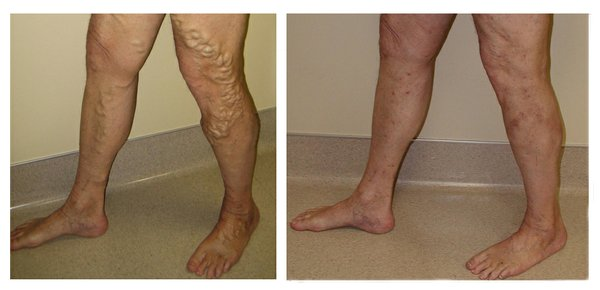 Robert Zimmerer's legs before and after receiving treatment at the Lawrence Vein Center.