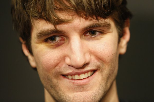 Kansas center Jeff Withey smiles with a black eye while talking with media members during a day of practices and press conference for teams in the South Regional at Cowboys Stadium in Arlington, Texas on Thursday, March 28, 2013. Withey suffered the shiner during the Jayhawks&#39; last game against North Carolina.
