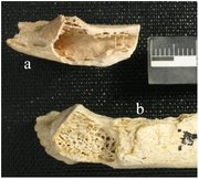 "This figure shows the Neanderthal rib bone (marked ""a"") found to have contained a fibrous dysplasia tumor by David Frayer, a professor of anthropology at Kansas University, and other researchers. This image is published here under a Creative Commons Attribution License, and it originally appeared with the article ""Fibrous Dysplasia in a 120,000+ Year Old Neandertal from Krapina, Croatia,"" by  Janet Monge, Morrie Kricun, Jakov Radovčić, Davorka Radovčić, Alan Mann and David W. Frayer, published in PLOS ONE on June 5."