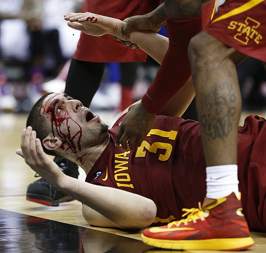 Iowa State forward Georges Niang lies on the floor bleeding from a gash above his eye suffered late in the second half on Friday, March 14, 2014 at Sprint Center in Kansas City, Missouri.
