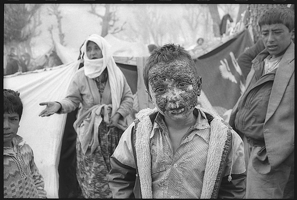 Napalm Wounds — A young boy stands outside his family's makeshift tent in the Isikveren refugee camp. His face has been disfigured from a napalm attack dropped on his village by Iraqi Air Force planes. There were no medical supplies available to treat his wounds.